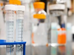 To Do OR Not To Do: Are Screening Tests Required Post-50?